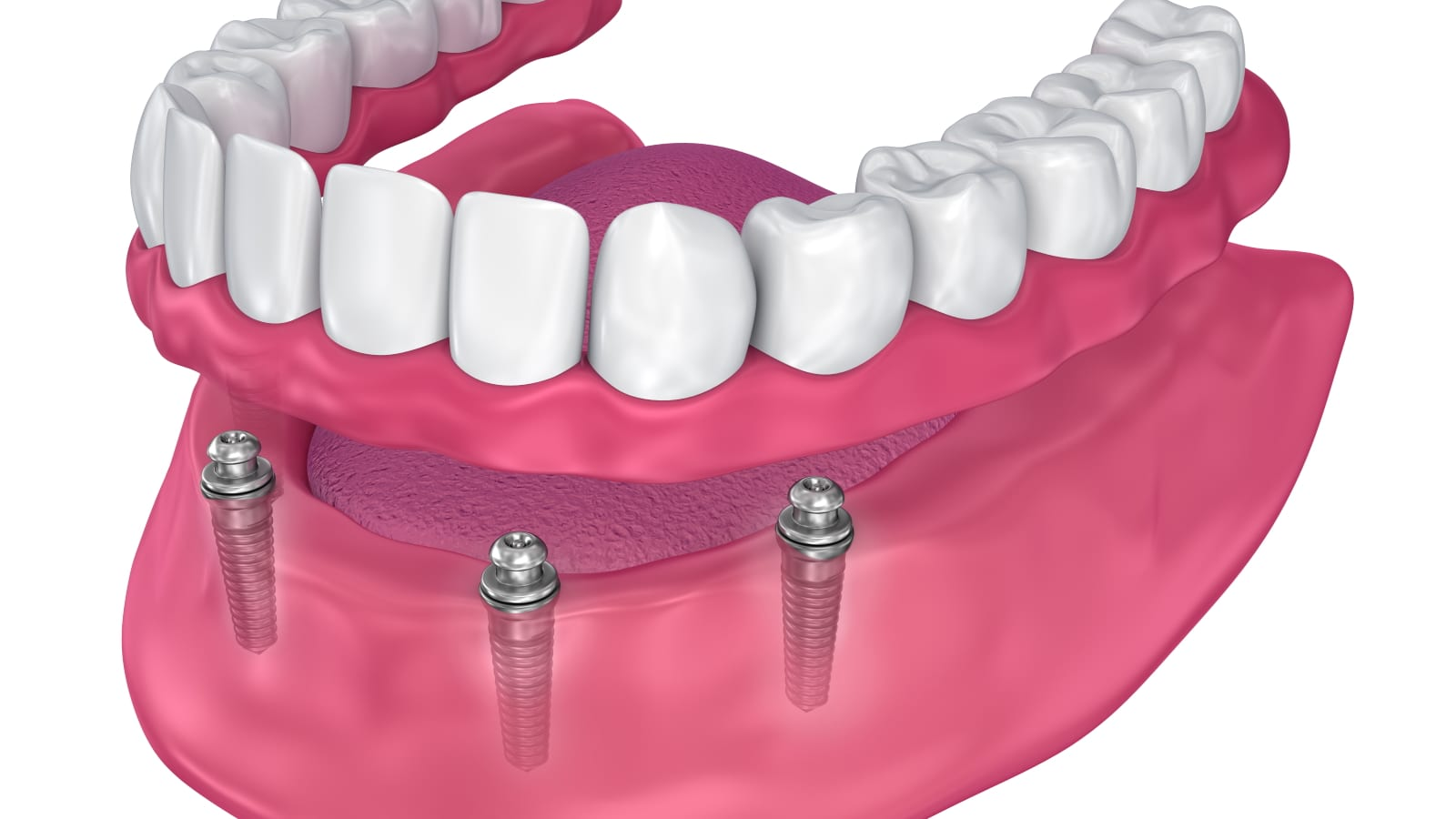 Rendering of Ball Attachment Dentures