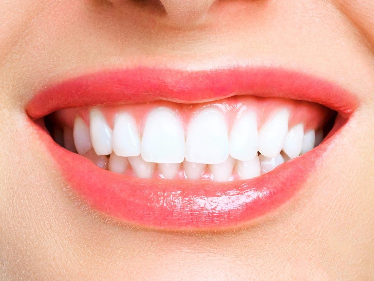 Freshly cleaned teeth