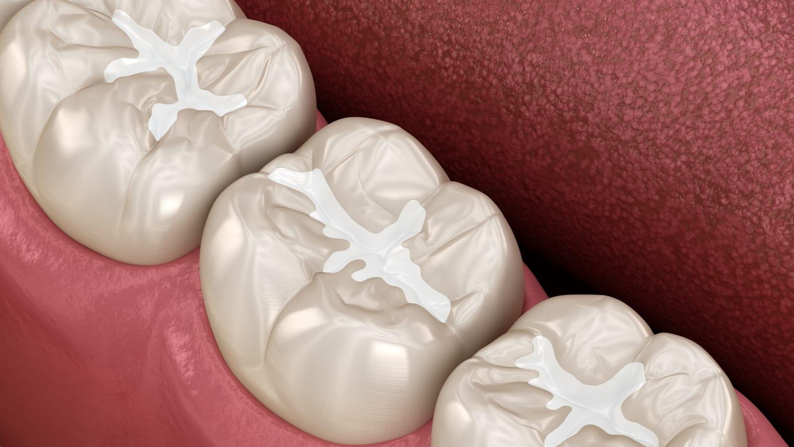 Image showing dental sealants
