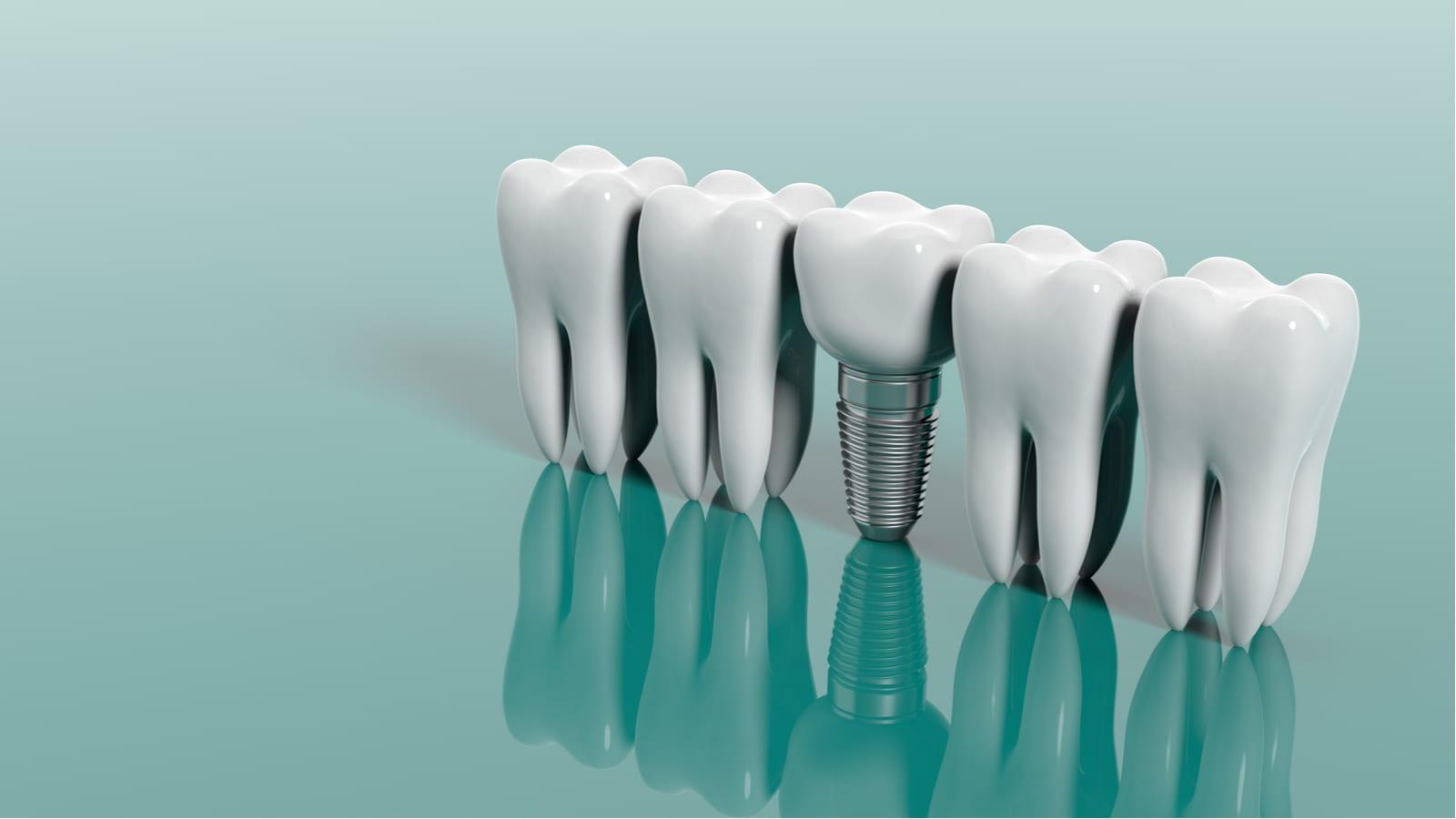 Rendering of natural teeth alongside dental implant