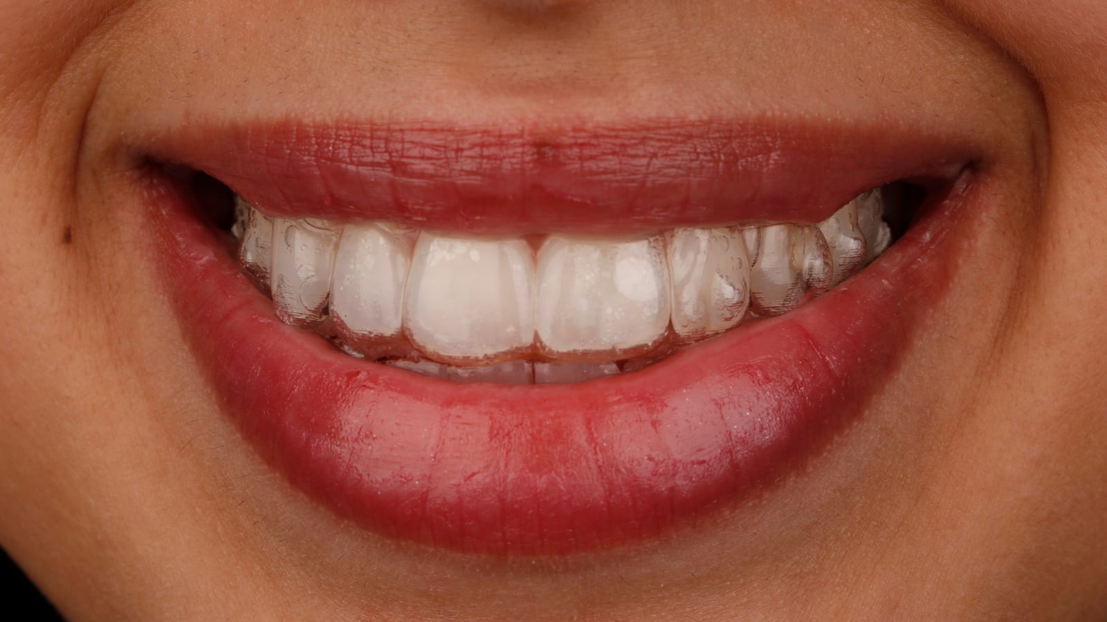 Smiling teeth with Invisalign