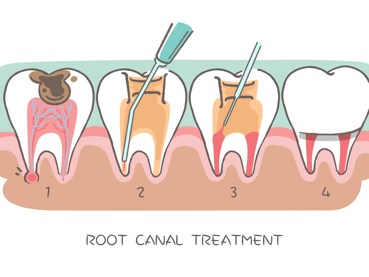Illustrated Root Canal Treatment
